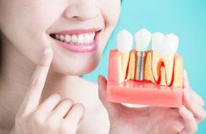 красивые импланты на зубы
