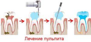 Стадии лечения пульпита