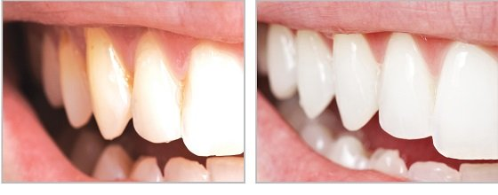 Результат полировки зубов пастой