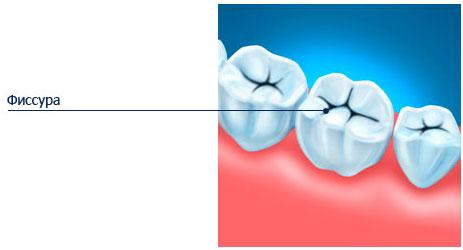 Фиссура зуба
