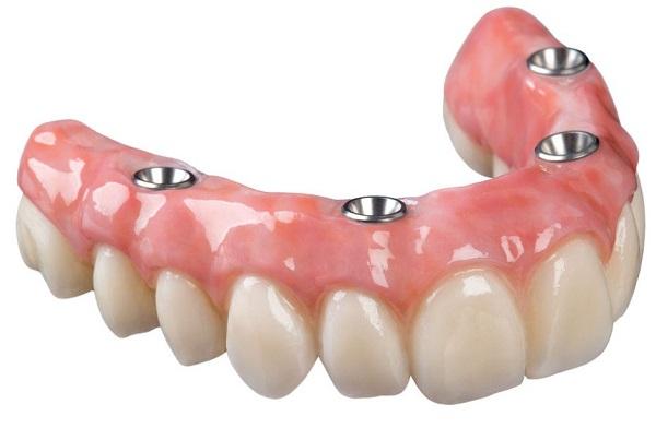 Условно-съемные зубные протезы