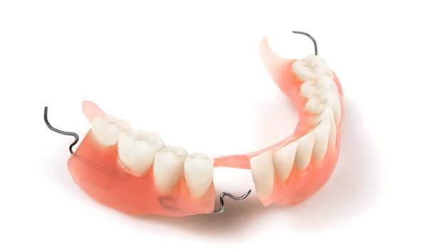 Частично съемные зубные протезы