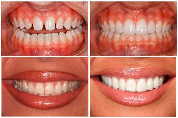 зубы до установки люминир и после