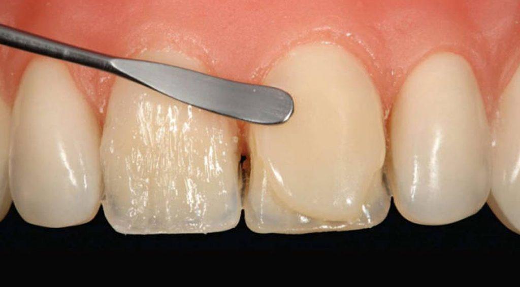 как восстановить сломанный зуб фото