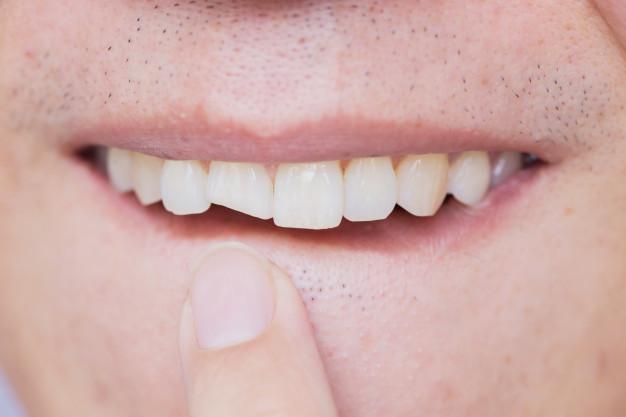 что делать, если сломался зуб фото