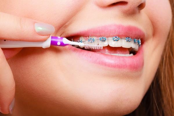 как чистить зубы после установки брекетов