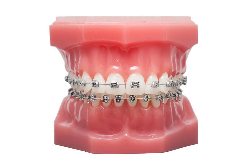 Методы выравнивания кривых зубов у детей