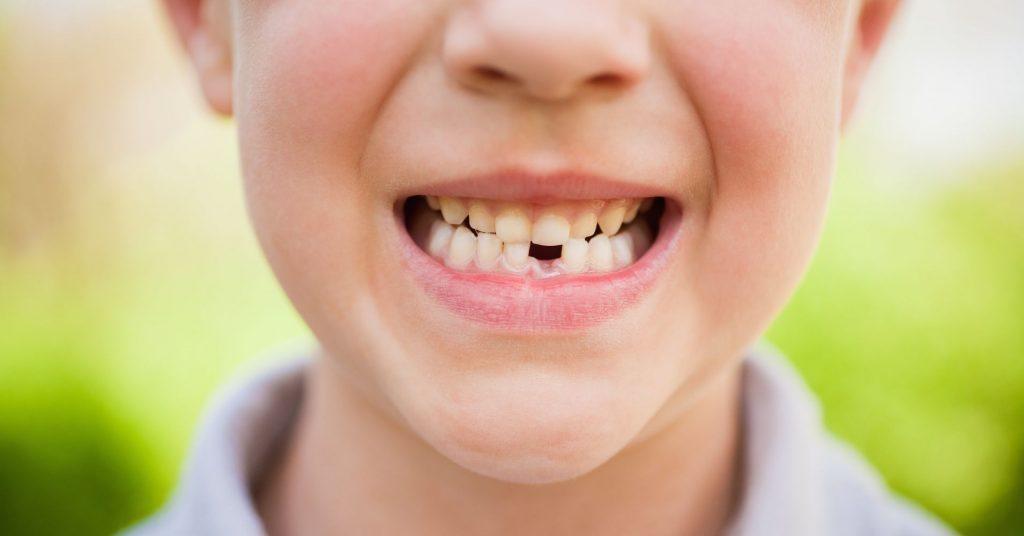 Показания и противопоказания к удалению молочного зуба