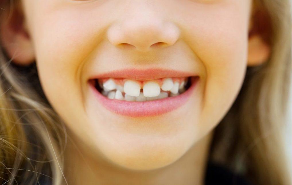 Выравнивание кривых передних зубов у детей