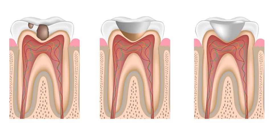 Назначение зубной пломбы