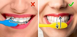 ошибки при чистке зубов фото
