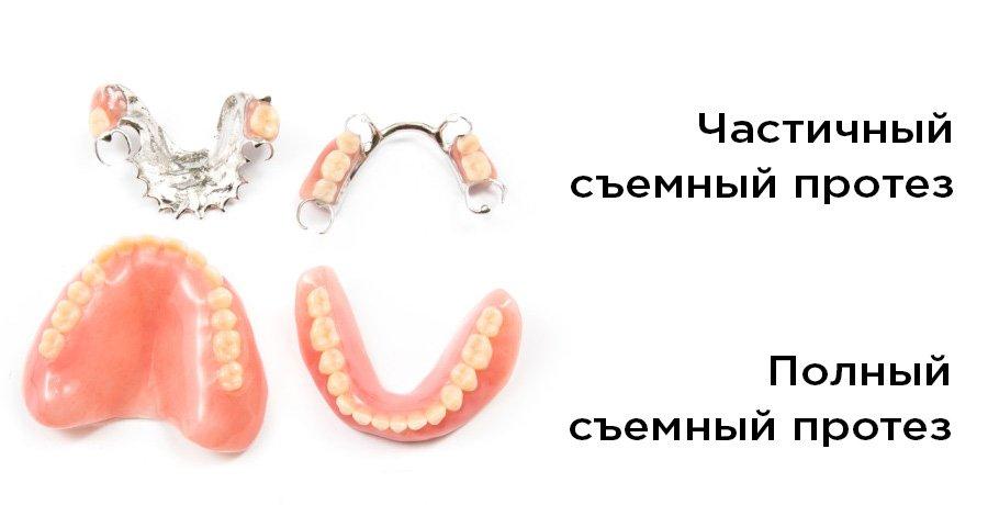 частичные зубные протезы какие фото