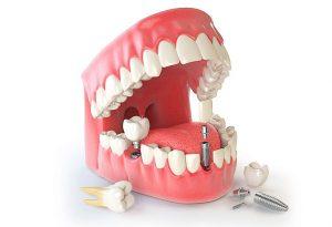 имплантация зубов рекомендации фото