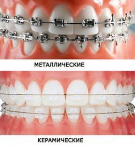 металлические и керамические брекеты фото