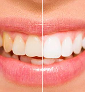 отбеливание зубов в стоматологии фото