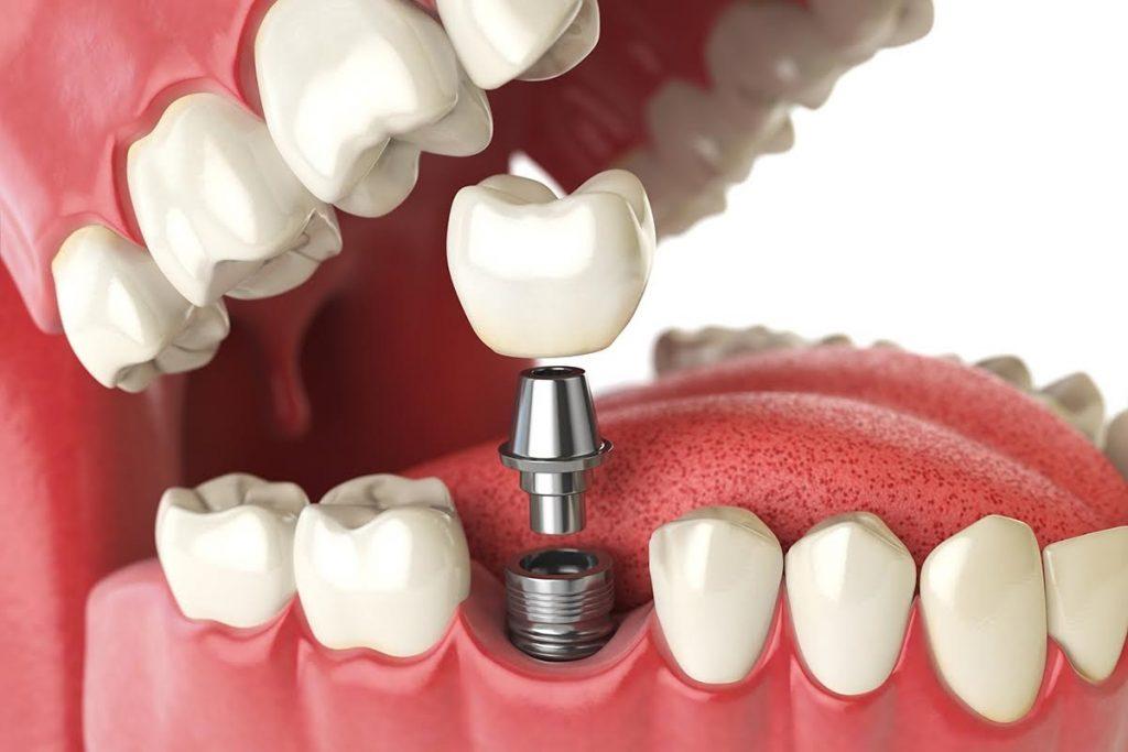 Имплантация зубов: виды