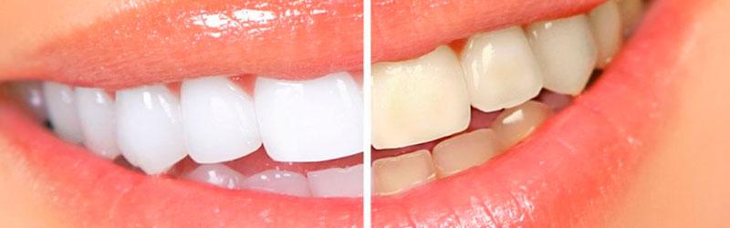 отбеливание зубов до после  фото