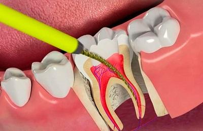 Основные показания к удалению зубного нерва