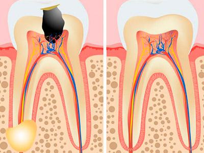 зубная гранулема вид фото