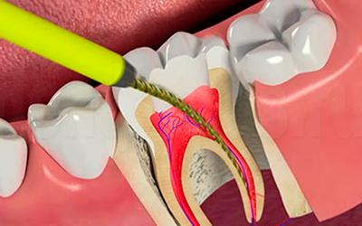 боль лечение каналов зуб фото
