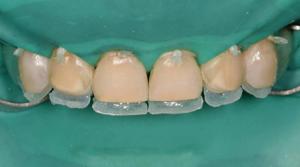 методы наращивания зубов фото