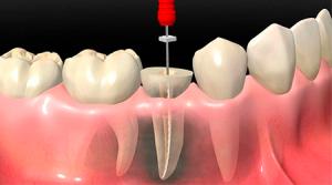 наращивание зуба на штифт фото