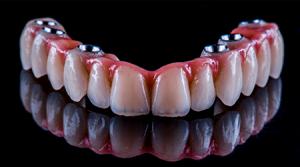 несъемные зубные протезы фото