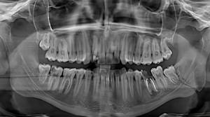 диагностика остеомиелита фото
