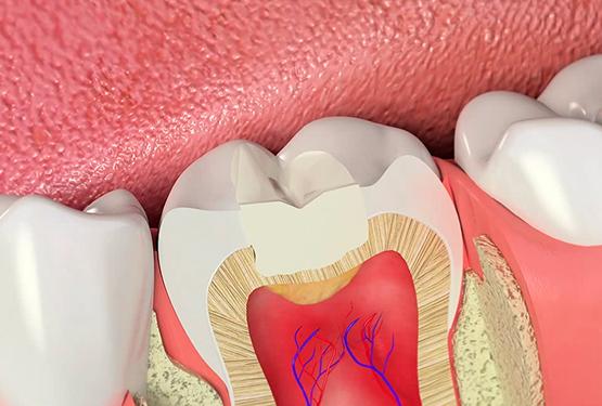 боль коренного зуба фото