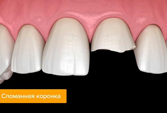 зубы после металлокерамики фото