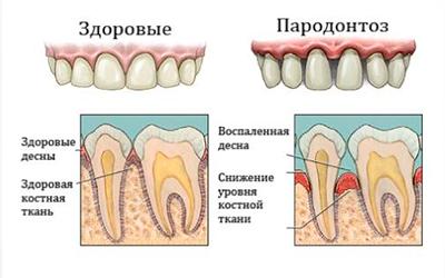 пародонтоз зубы шатаются фото