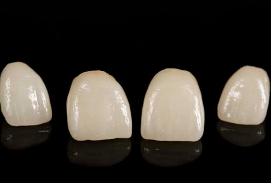 какие коронки на зубы лучше металлокерамика фото