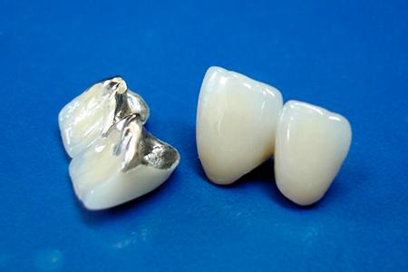 фото виды коронок на зубы и какие лучше