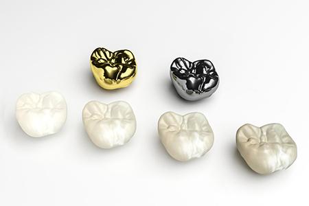 фото коронки на зубы виды