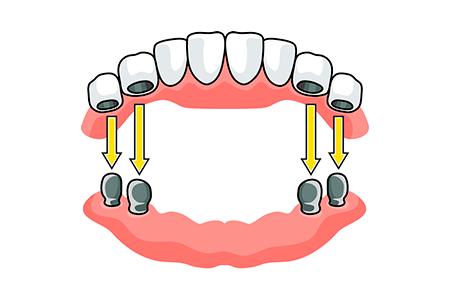 как крепятся зубные протезы картинка