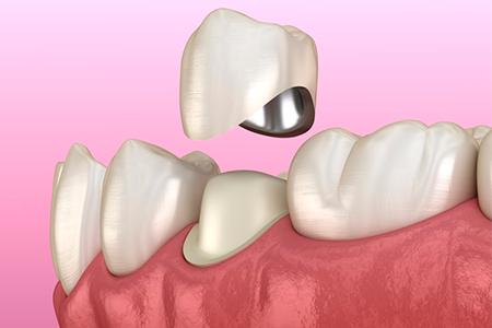 виды зубных протезов фото