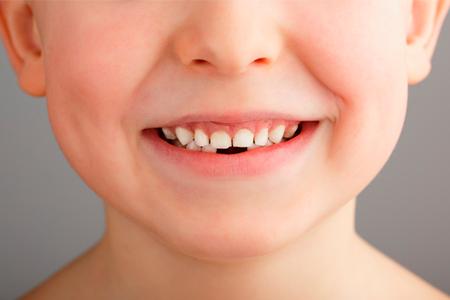 когда меняются молочные зубы фото